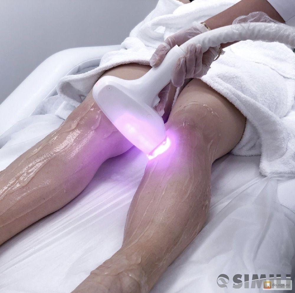Лазерная эпиляция In-Motion D1-Удаление нежелательных волос
